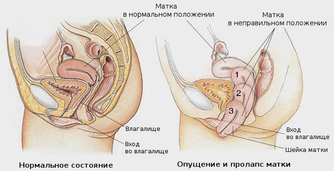 ureaplazma-parvum-pri-oralnom-sekse